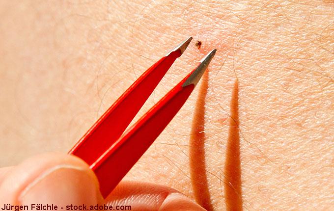 Pinzette greift nach kleiner Zecke